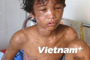 Một cậu bé 14 tuổi bị chủ trại tôm tra tấn dã man