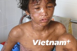 Đề xuất luật sư bảo vệ miễn phí cho cháu Hào Anh