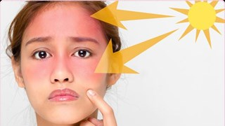 [Video] Những sai lầm cơ bản khi dùng kem chống nắng