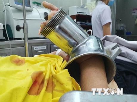Cấp cứu thành công một phụ nữ bị cuốn bàn tay vào máy xay thịt