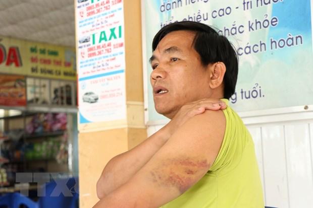 Dak Nong: Dieu tra Chanh Van phong Huyen uy Tuy Duc hanh hung lai xe hinh anh 2