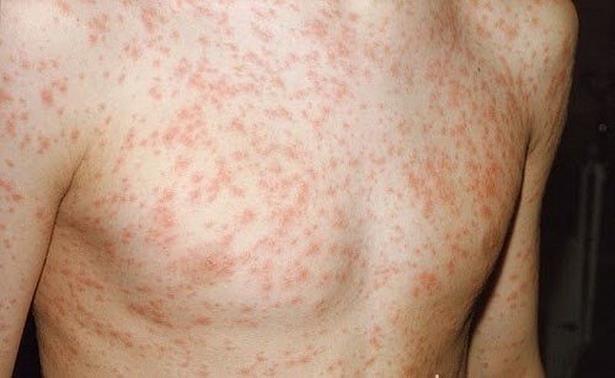 Bệnh sởi chủ yếu lây qua tiếp xúc da ở những nốt ban. Đúng hay sai?