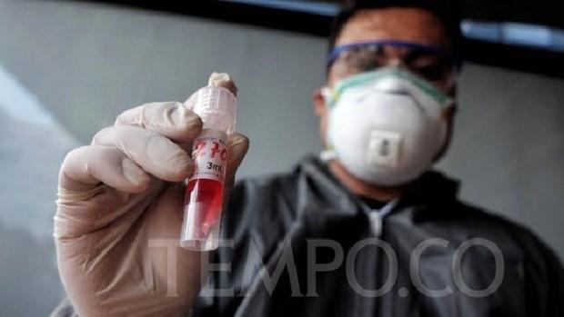 Indonesia bat dau san xuat bo dung cu xet nghiem nhanh COVID-19 hinh anh 1