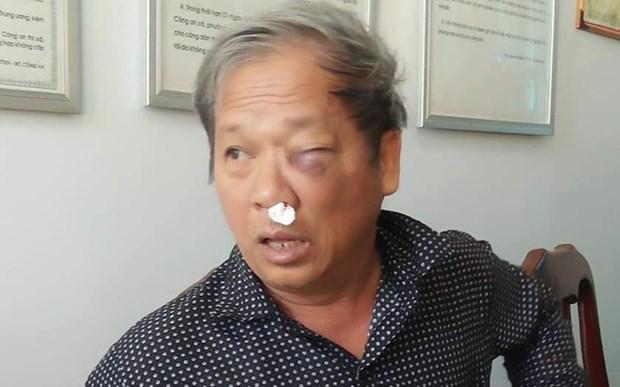 Hoi Nha bao de nghi xu ly vu hanh hung phong vien TTXVN va VTV hinh anh 1