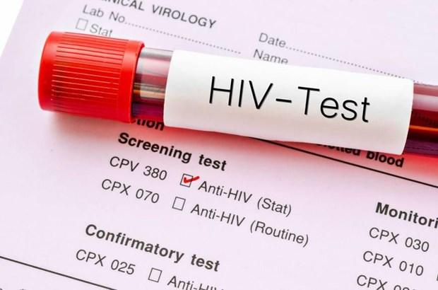 Ninh Binh: Duoc giai oan sau 8 nam mang than phan nhiem HIV/AIDS hinh anh 1