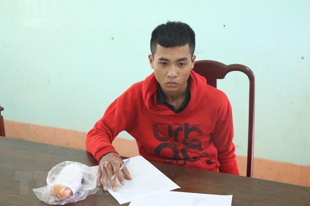 Binh Phuoc: Bat doi tuong dot nha nghi vi de mat xe cua ban gai hinh anh 1