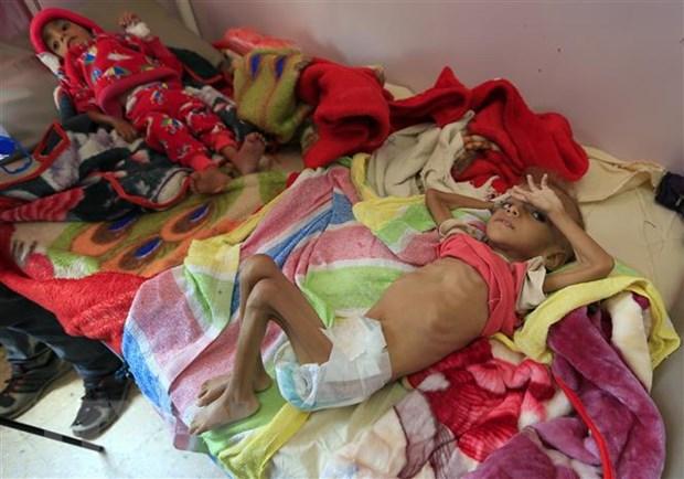 Hon 85.000 tre em chet vi doi va benh tat tai Yemen trong 3 nam qua hinh anh 1