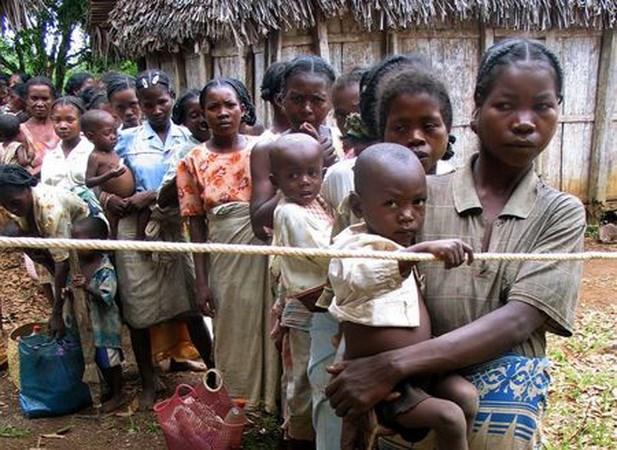 Madagascar: Gan 1.000 tre em tu vong vi benh soi chi trong 4 thang hinh anh 1
