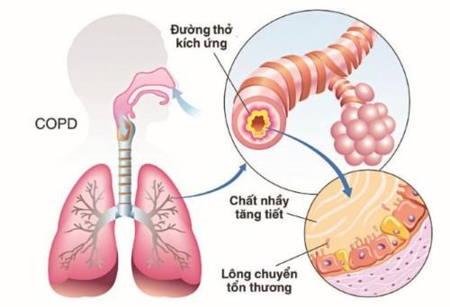 Ghép tế bào gốc tự thân để điều trị bệnh phổi tắc nghẽn mạn tính