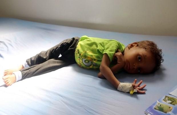 UNICEF len an viec hon 2.200 tre em bi sat hai o Yemen hinh anh 1