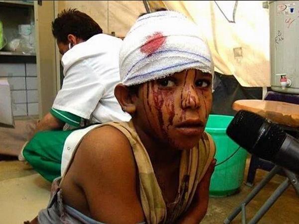 Lien quan Saudi Arabia khong kich Houthi, 10 tre em thiet mang hinh anh 1