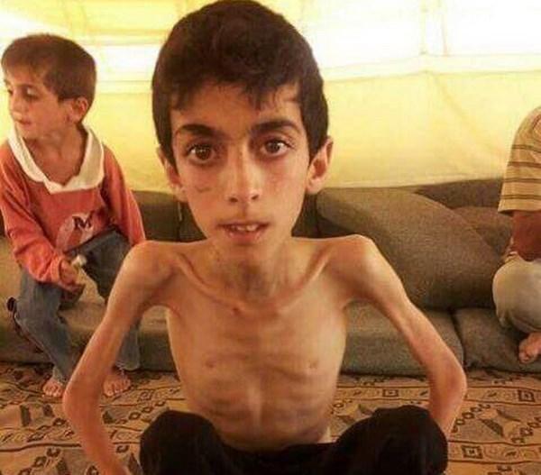 Am anh mui xac chet phang phat tai thi tran nho o Syria hinh anh 1