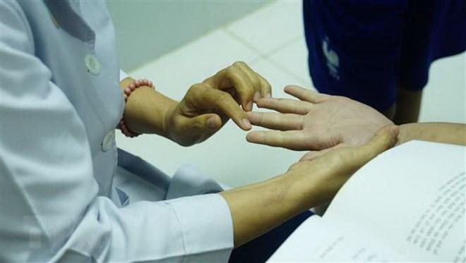 Khánh Hòa: Hơn 1.300 người bị tay chân miệng, nhiều ca ở thể nặng - ảnh 1